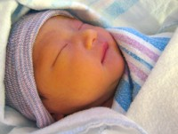 icter la nou nascuti Icterul: tipuri, simptome, diagnostic si tratament