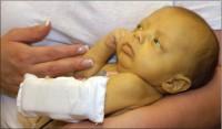 boala hemolitica prin incompatibilitate Rh 200x117 Boala hemolitica a nou nascutului
