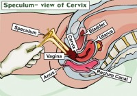 examinare pelvina cu speculum 200x140 Examinarea pelvina in sarcina