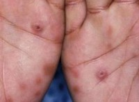 sifilis 200x147 Sifilisul in sarcina