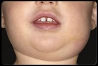 oreion 200x135 Bolile copilariei (IV) Oreionul