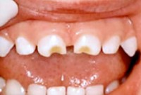 caria de biberon 200x134 Cariile dentare la copii: cauze, tratament si prevenire. Ata dentara