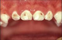 carii Cariile dentare la copii: cauze, tratament si prevenire. Ata dentara