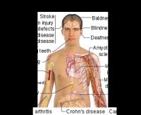 boli tratabile 2 200x164 Boli tratabile cu celule stem din cordonul ombilical
