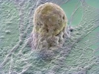 celula stem amplificata prin micrografie electronica fotografie la microscop 200x150 Ce sunt celulele stem?