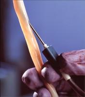 recoltare sange ombilical 176x200 Recoltarea celulelor stem