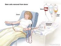 recoltare sange periferic 200x152 Transplantul de celule stem