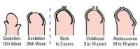 evolutie pe varste 200x70 Fimoza si decalotarea la bebelusi si baietei