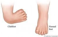 comparatie varus equin picior normal 200x130 Piciorul stramb congenital sau varus equin la copii