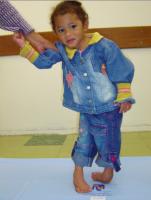 copil cu varus equin 151x200 Piciorul stramb congenital sau varus equin la copii