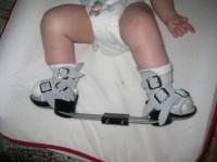 orteze 200x149 Piciorul stramb congenital sau varus equin la copii