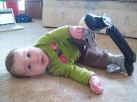 orteze2 200x150 Piciorul stramb congenital sau varus equin la copii