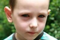 conjunctivitis2child 200x133 Conjunctivita la bebelusi si copii